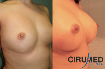 Supercharged breast augmentation (fat transfer/silicone) after 1035121
