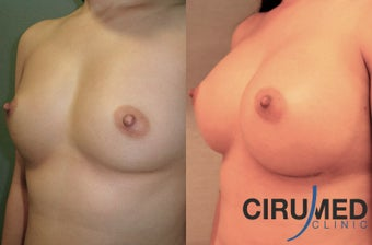 Supercharged breast augmentation (fat transfer/silicone) before 1035121