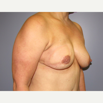 54 year old woman treated with Breast Reconstruction with Latissimus Flap after 3436022