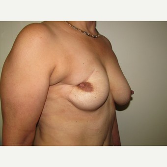 54 year old woman treated with Breast Reconstruction with Latissimus Flap before 3436022