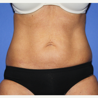 45-54 year old woman treated with Tummy Tuck before 3488502
