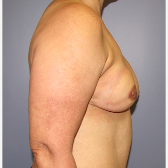 54 year old woman treated with Breast Reconstruction with Latissimus Flap after 3436016