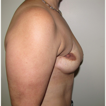 54 year old woman treated with Breast Reconstruction with Latissimus Flap before 3436016