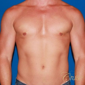41 year old body builder treated with male breast reduction after 3502281