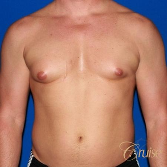 41 year old body builder treated with male breast reduction before 3502281