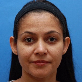 Young woman bothered by her prominent ears. She is interested in Otoplasty before 3670707