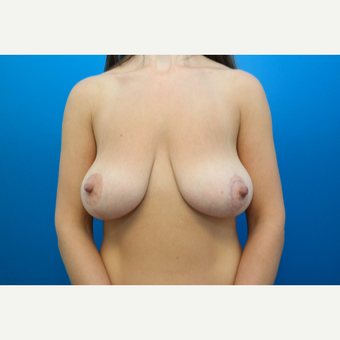 35-44 year old woman treated with Breast Lift before 3104953