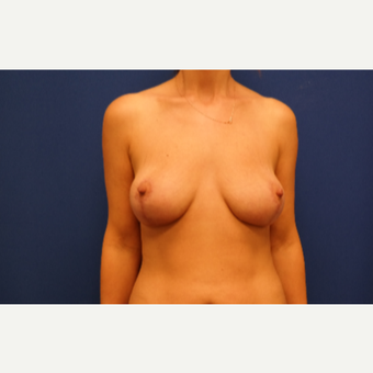 35-44 year old woman treated with Breast Lift after 3104953