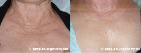 Platelet-Rich-Plasma Injections in the Lower Neck and Upper Chest before 1547461