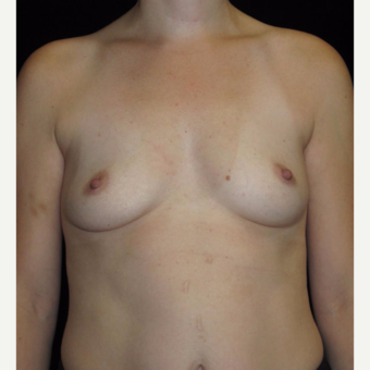 33 year old woman treated with Breast Augmentation  before 3104745