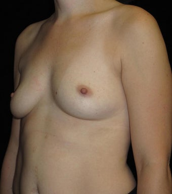 33 year old woman treated with Breast Augmentation  3104745