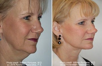 Face lift with dermabrasion  before 91406