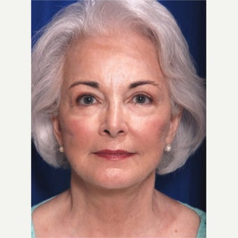 65-74 year old woman treated with Facelift after 2149211
