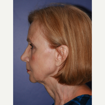 67 year old woman treated with Facelift before 3710707