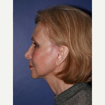 67 year old woman treated with Facelift after 3710707