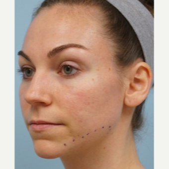 25-34 year old woman treated with Acne Scars Treatment before 3727562