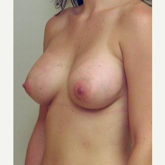 Breast Implants after 3241513