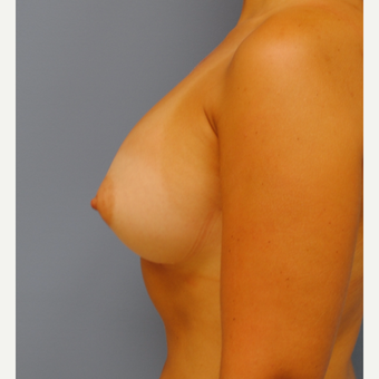 23 year old woman treated with Breast Augmentation using 375 cc MPP silicone and changing form B to after 3208125