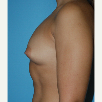 23 year old woman treated with Breast Augmentation using 375 cc MPP silicone and changing form B to before 3208125
