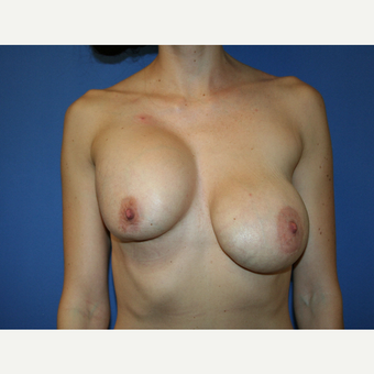 25-34 year old woman treated with Breast Implant Revision before 2994255