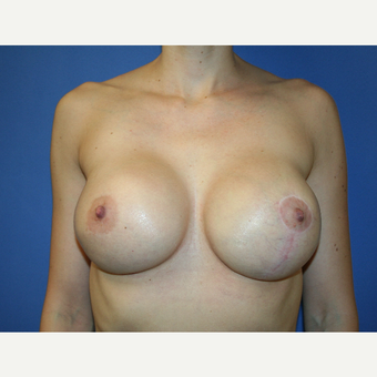 25-34 year old woman treated with Breast Implant Revision after 2994255