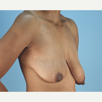 25-34 year old woman treated with Breast Lift before 3837755