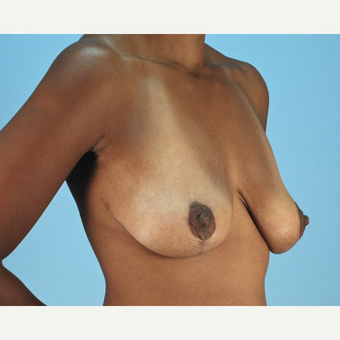 25-34 year old woman treated with Breast Lift after 3837755