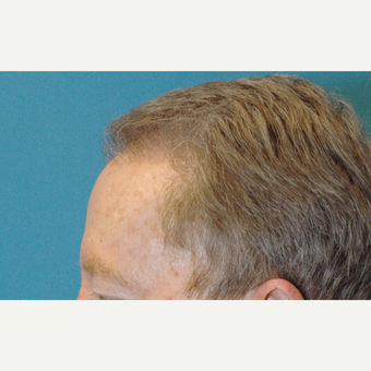 60 year old man treated with NeoGraft FUE transfer of 3000 grafts after 3770125