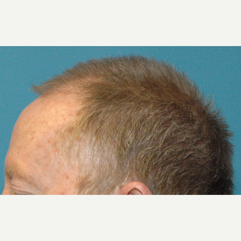 60 year old man treated with NeoGraft FUE transfer of 3000 grafts before 3770125