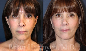 62 year-old female before and 3.5 months after Facelift and Fat Transfer (Autologous Fat Transplant) before 3445860