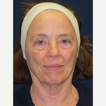 65-74 year old woman treated with Facelift before 3305945