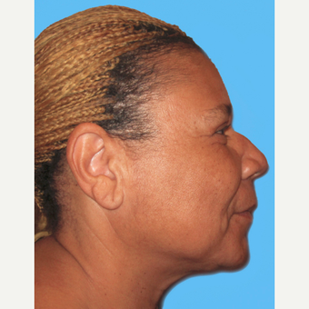 Neck Lift after 3824794