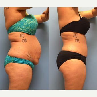 30 year-old woman treated with Tummy Tuck and Lipo 360 before 3494878