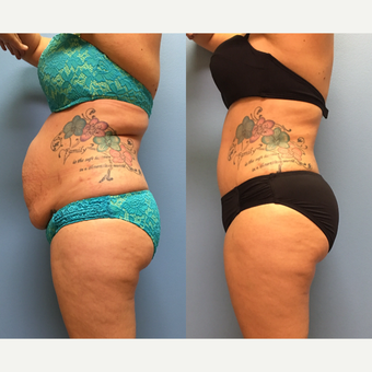 30 year-old woman treated with Tummy Tuck and Lipo 360 after 3494878