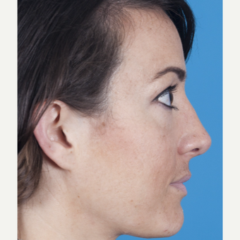 25-34 year old woman treated with Nose Surgery after 3050326