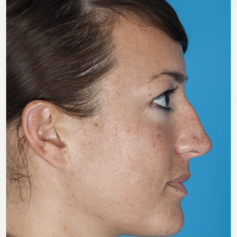 25-34 year old woman treated with Nose Surgery before 3050326