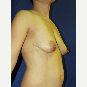 45-54 year old woman treated with Breast Lift before 3136107