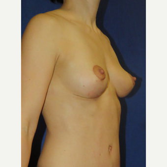 45-54 year old woman treated with Breast Lift after 3136107
