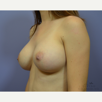 25-34 year old woman treated with Breast Augmentation after 3419093
