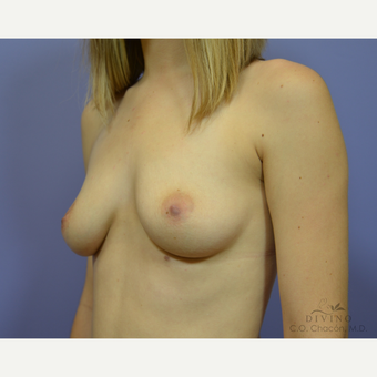 25-34 year old woman treated with Breast Augmentation before 3419093