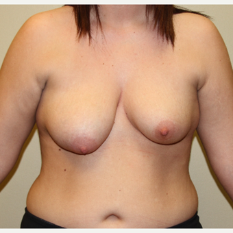 18-24 year old woman treated with Breast Lift