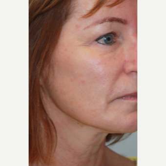 55-64 year old woman treated with Liquid Facelift after 2683217