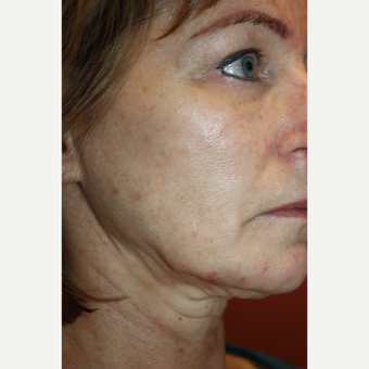 55-64 year old woman treated with Liquid Facelift before 2683217