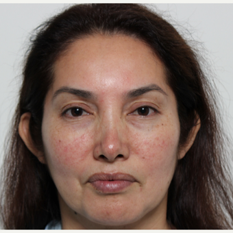45-54 year old woman treated with Rhinoplasty before 3442528