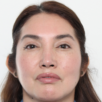 45-54 year old woman treated with Rhinoplasty after 3442528