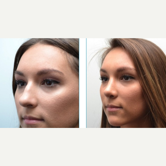 18-24 year old woman treated with Rhinoplasty after 3747720
