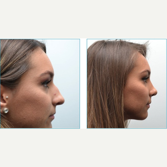 18-24 year old woman treated with Rhinoplasty before 3747720