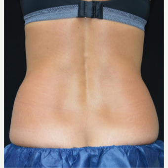 25-34 year old woman treated with CoolSculpting before 3239528