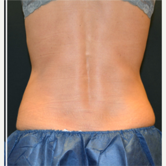25-34 year old woman treated with CoolSculpting after 3239528