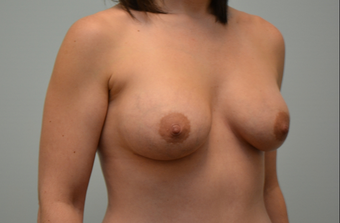 Breast augmentation with 245cc Natrelle Gel Anatomically-Shaped implants 2217725